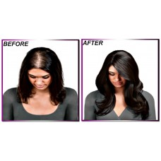 vedJi Hair Loss Treatment : 100% Natural & Effective