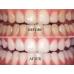 ved Ji Bright Teeth : Remove Yellowness