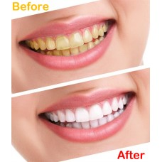 Bright Teeth : Remove Yellowness